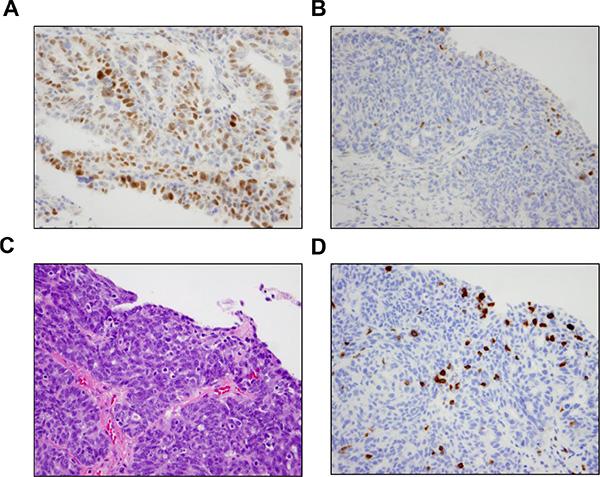 Results of BRCA1 immunohistochemistry.