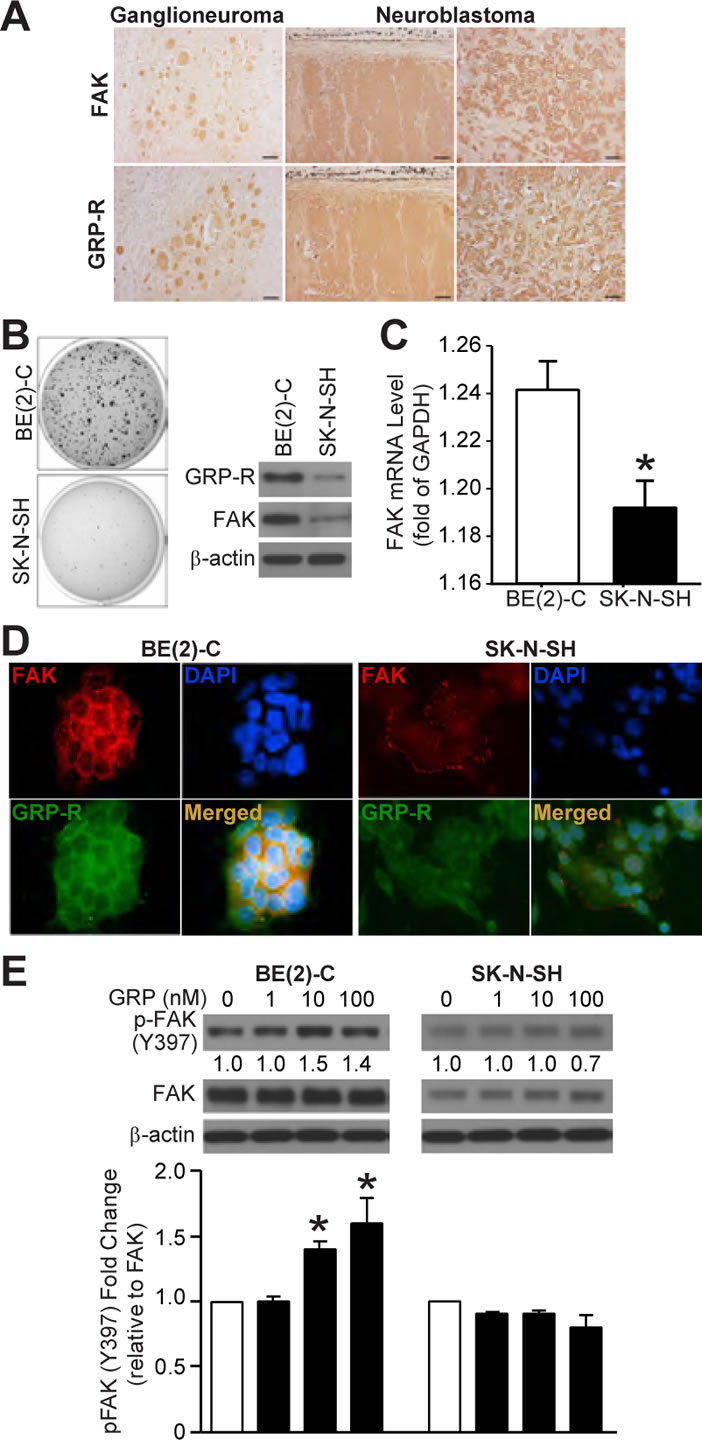 GRP-R and FAK expressions correlate to neuroblastoma malignancy and GRP-induced FAK activation (Y397).