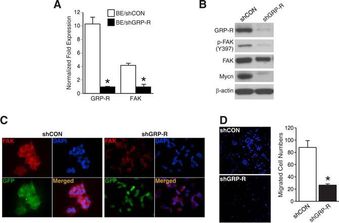GRP-R silencing decreased FAK and cell migration in BE(2)-C cells.