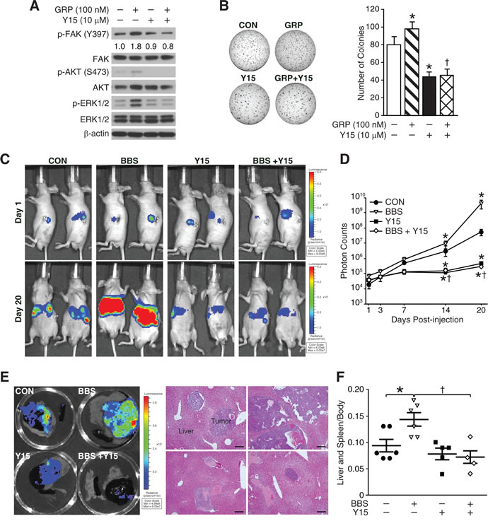 Y15, a FAK inhibitor blocks BBS-induced neuroblastoma growth and metastasis.