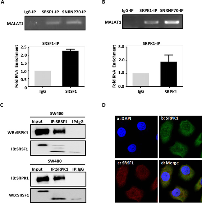 MALAT1 interacts with SRPK1 and SRSF1 protein.