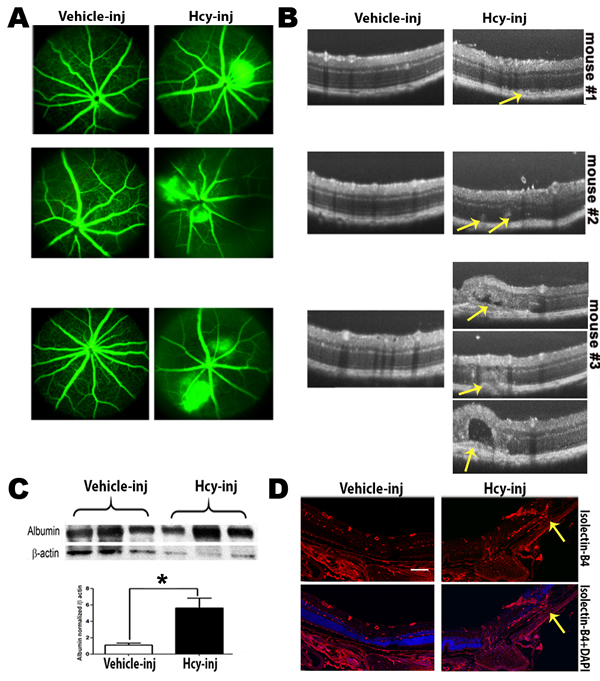 Evaluation of Retinas of C57BL6 mice injected intravitreally with Hcy-thiolactone.