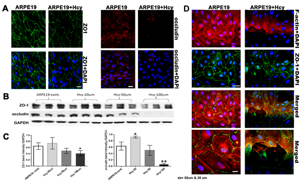 Evaluation of Tight junction proteins and cytoskeletal microfilament of ARPE-19 cells treated with and without Hcy-thiolactone.