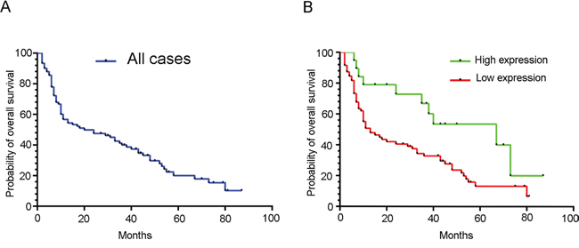 Low TTP expression predicts poor patient outcome.