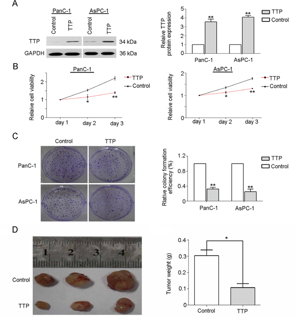 Over-expression of TTP impairs pancreatic cancer cell growth in vivo and in vitro.