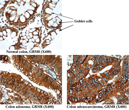 Representative images of non-neoplastic normal colon, colon adenoma and colon adenocarcinoma tissue staining of GRM8.