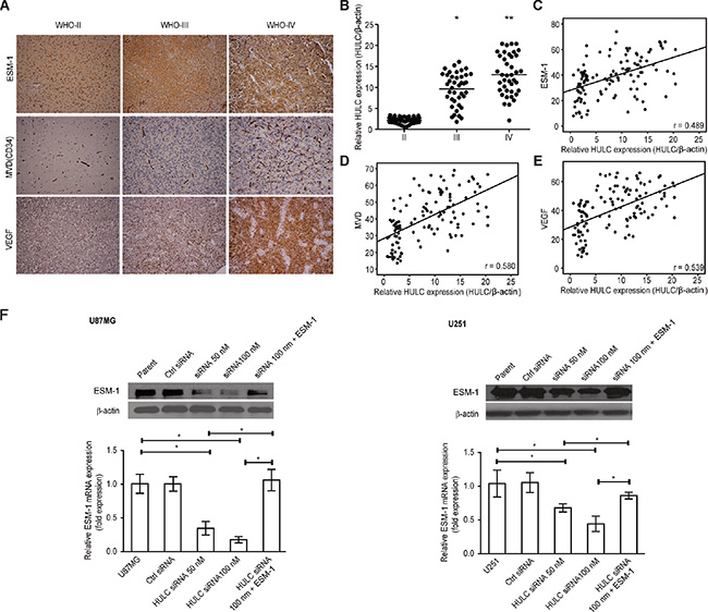 The correlation of HULC, ESM-1, VEGF, and microvessel density in pathological tissue from glioma patients.
