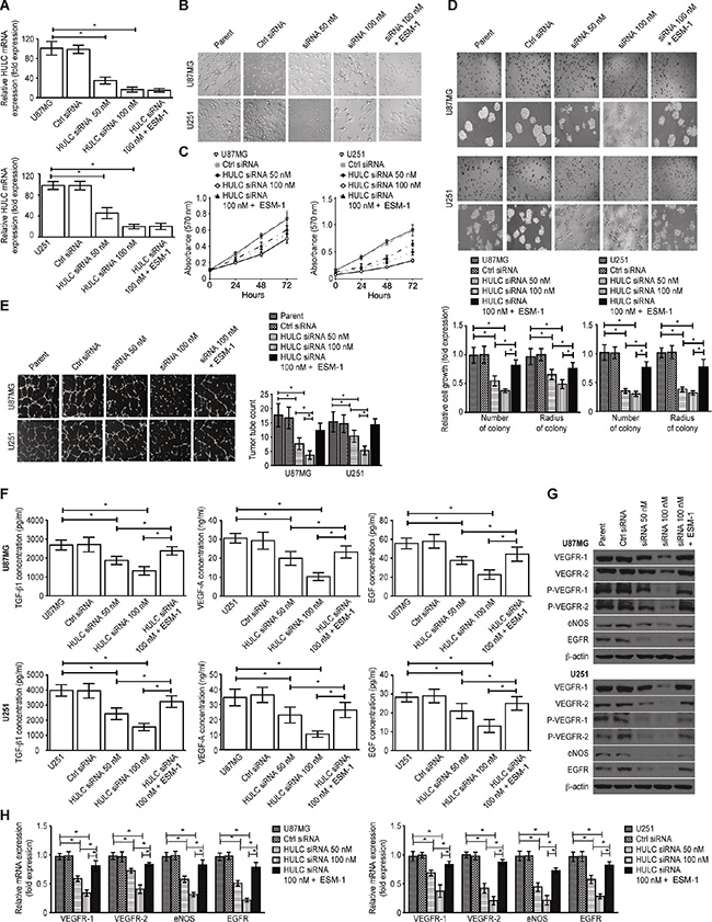 Effect of HULC on the potential of proliferation and angiogenesis of glioma cells in vitro.