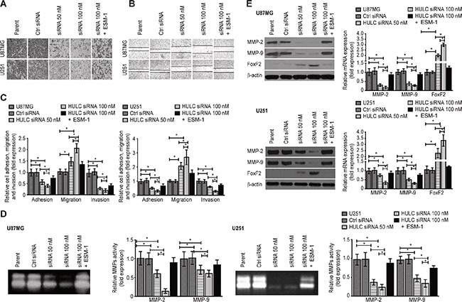 Effects of HULC on the invasion, adhesion and migration potential of glioma cells in vitro.