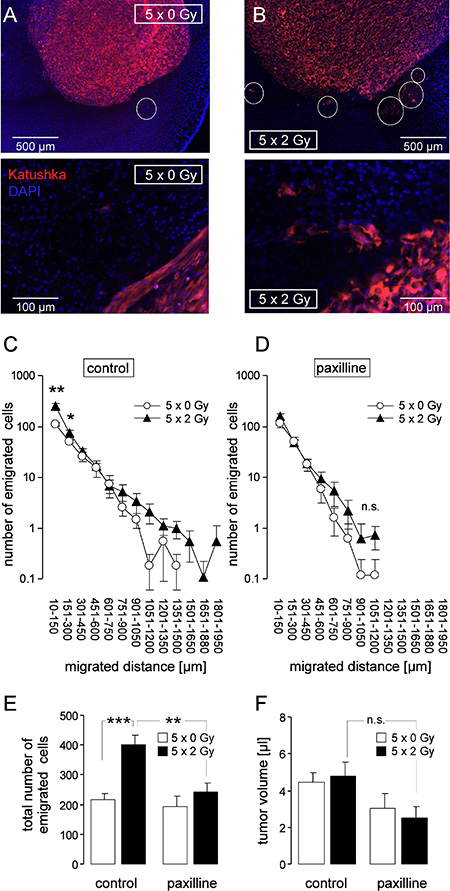 Fractionated IR stimulates migration of glioblastoma cells in vivo.