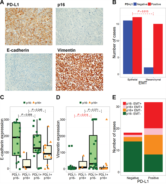 PD-L1 expression is associated with epithelial-mesenchymal transition.