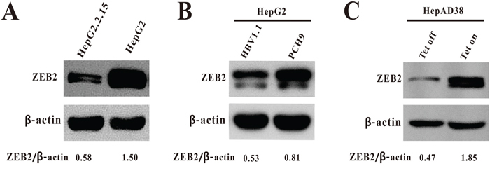 The expression of ZEB2 in HBV-expressing cells.