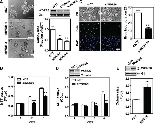 WDR26 promotes proliferation of breast cancer cells.