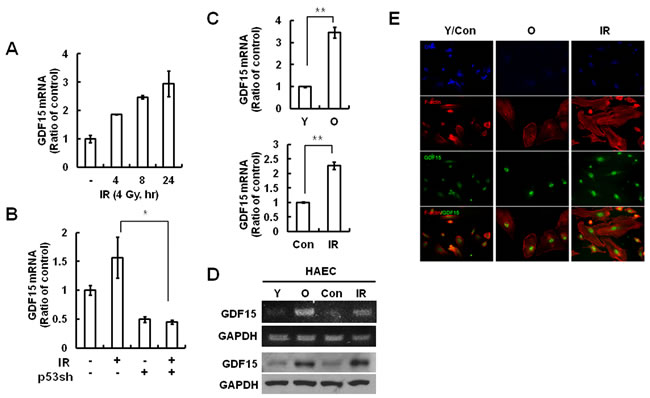 GDF15 expression levels in IR-induced endothelial cell senescence.
