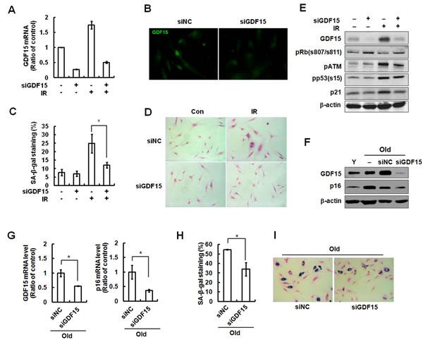 Reversal of cellular senescence following knockdown of GDF15 in HAECs.