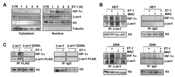 Nuclear β-arr1 interacts with HIF-1α in EOC cells upon ET