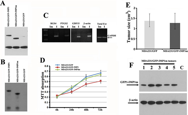 The KH34 domain of IMP1 is required for the target mRNA binding and for repressing proliferation of carcinoma cells as well as the growth of cell-derived breast tumors.