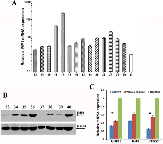 IMP1 expression correlated with the levels of its target mRNAs in human breast tumors.