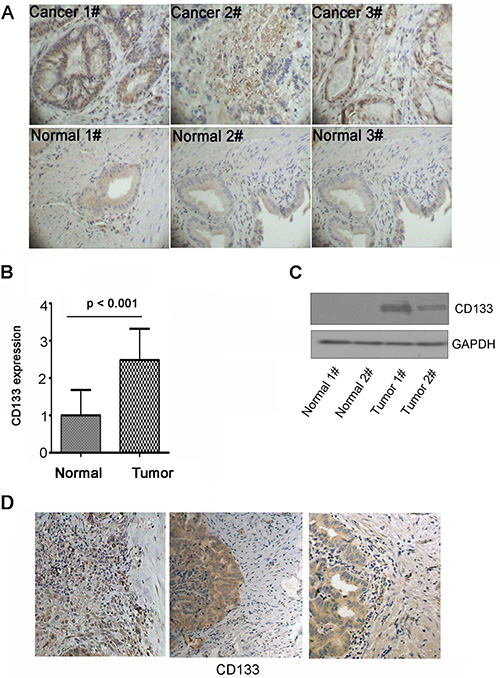 CD133 is highly expressed in gallbladder carcinoma and locates in the invasive areas in gallbladder carcinoma.
