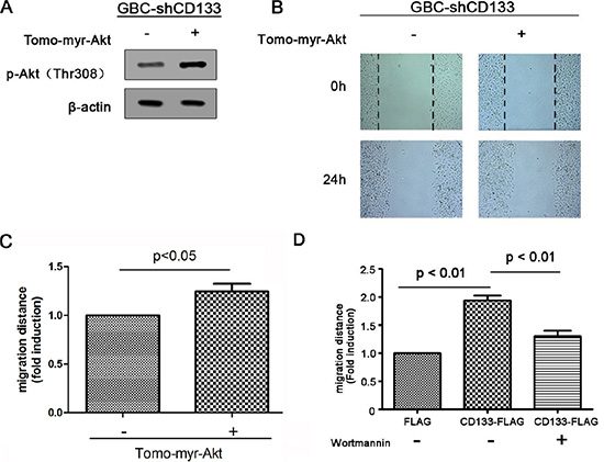 CD133 promotes gallbladder carcinoma cell migration through activating Akt phosphorylation.