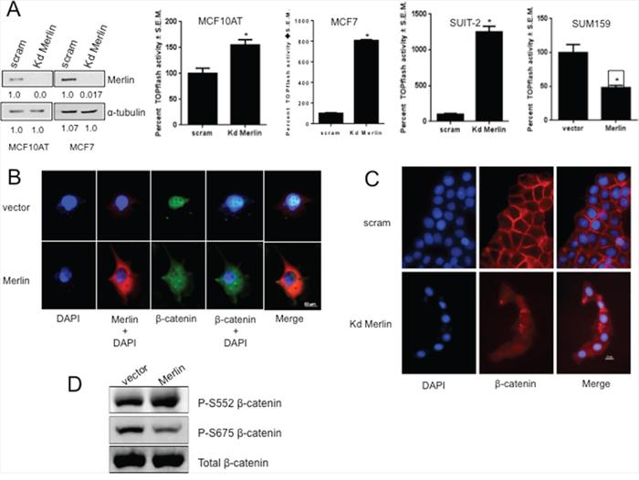 Merlin suppresses β-catenin-mediated transcriptional activity by altering sub-cellular localization of β-catenin.