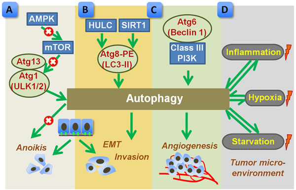 Proposed role of autophagy in promoting metastasis of gastric cancer.