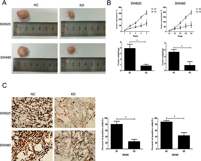 Effect of ZFX knockdown on the growth of CRC cell xenografts.