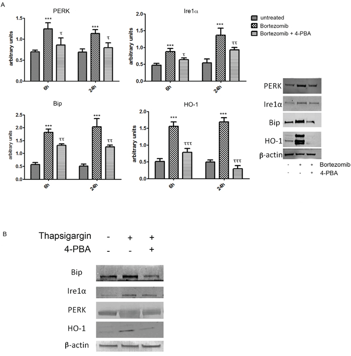 PERK, IRE1α, BiP and HO-1 protein levels in U266 cell cultures treated with BTZ (15 nM for 24h)