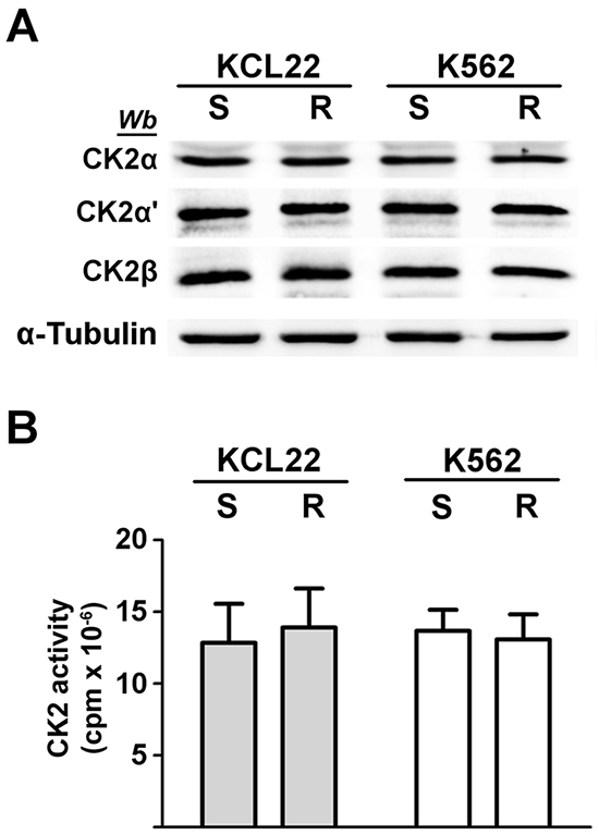 Analysis of CK2 expression and activity in CML cells.