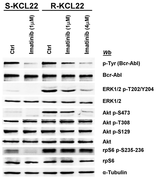 Effect of imatinib on MEK/ERK1/2 and PI3K/Akt/mTOR pathways in KCL22 cells.