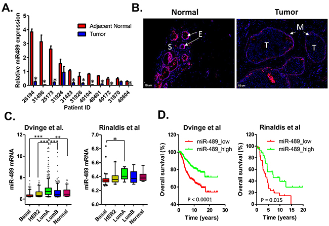 Expression status of miR-489 in primary breast cancer tissues.