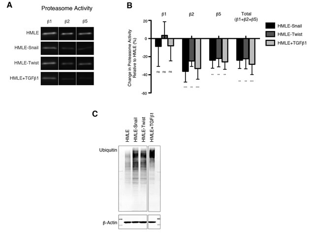 Downregulation of proteasome activity is associated with EMT.