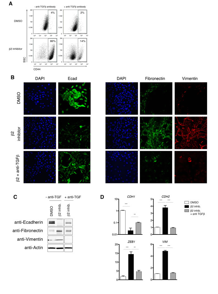 Proteasome inhibitor-induced EMT is dependent on TGF-β1 signaling.