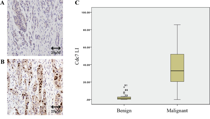 Immunohistochemistry of benign A. and malignant B. pancreatic tissue showing Cdc7 staining.