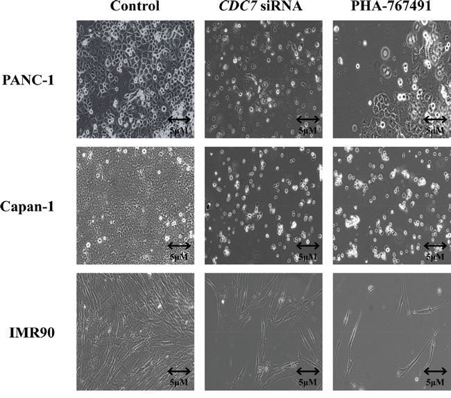 Phase contrast light microscopy of PANC-1, Capan-1 or IMR90 cells treated with either siRNA or PHA-767491, compared with controls.