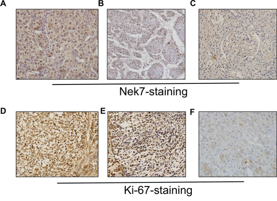 Immunohistochemistry of Nek7 and Ki-67 on HCC specimens.