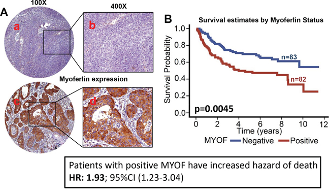 Myoferlin expression is associated with poor overall survival in OPSCC.