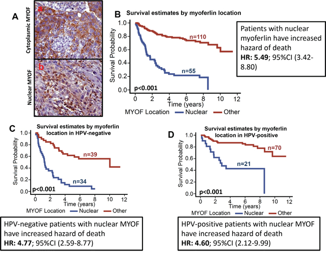 Patients with nuclear myoferlin have significantly poor survival.