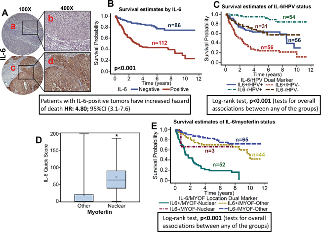 High IL-6 expression is associated with poor overall survival and directly correlates with nuclear myoferlin expression.