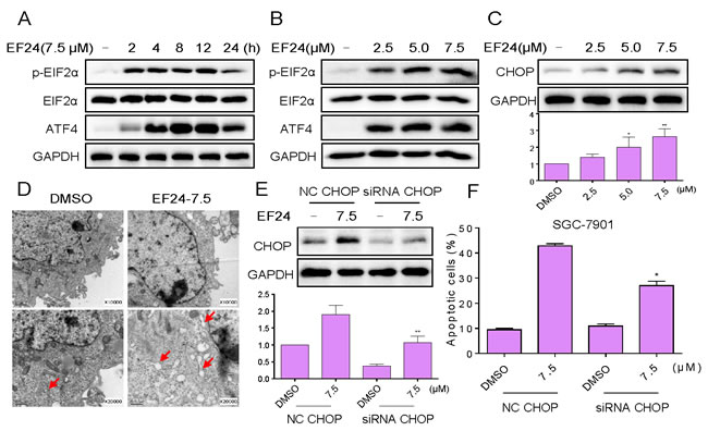 EF24 activates ER stress, which contributes to EF24 lethality in gastric cancer cells.