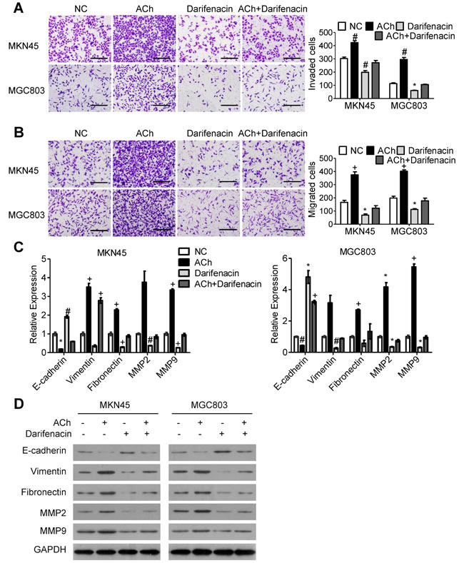 M3Rs mediate the effects of ACh on GC cell invasion, migration and EMT.