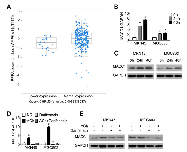 MACC1 expression is regulated by ACh and M3R.