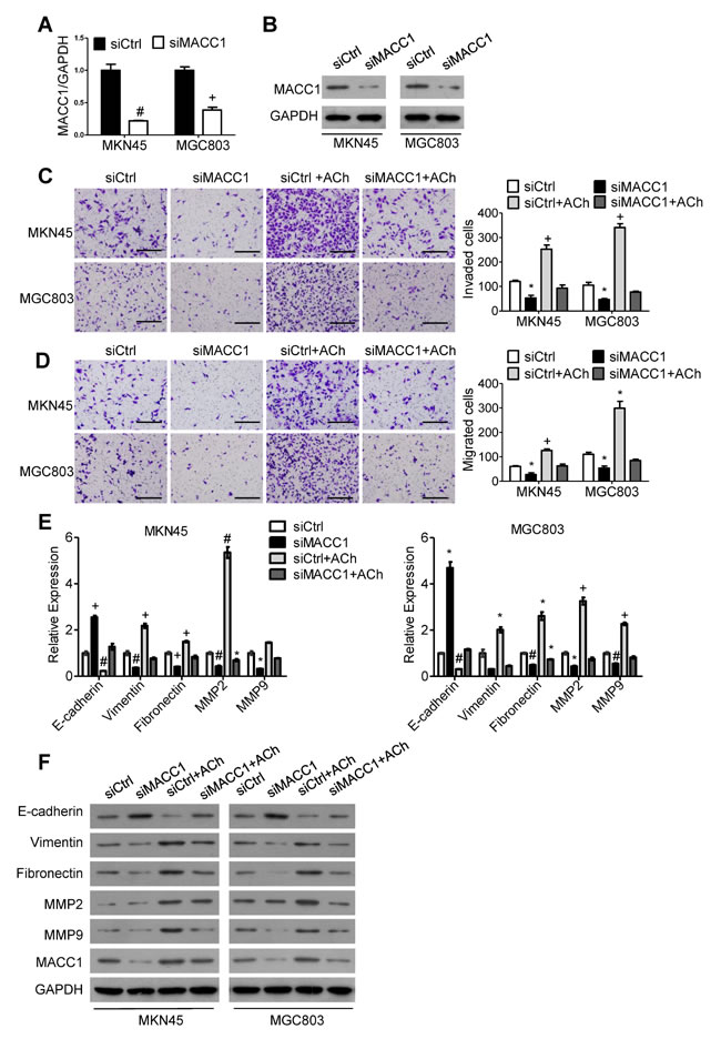 MACC1 mediates ACh promotion of GC cell invasion, migration and EMT.