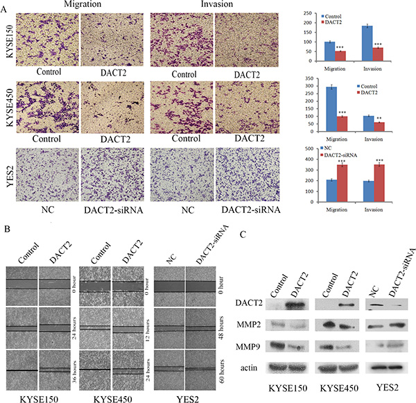 DACT2 suppresses esophageal cancer cell invasion and migration.