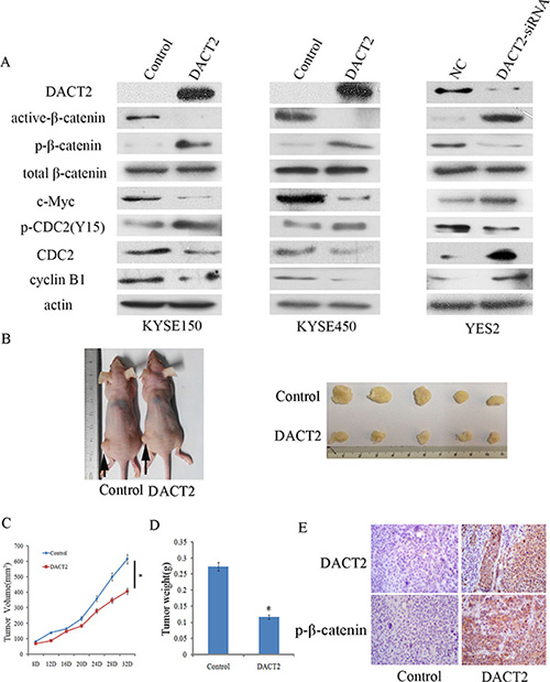 DACT2 inhibits Wnt signaling in esophageal cancer cell lines and a xenograft mouse model.