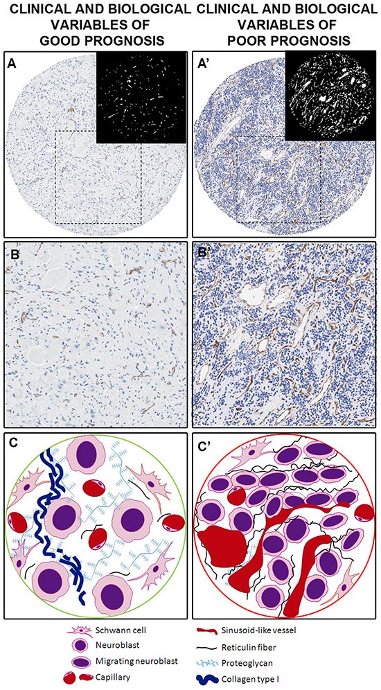 Examples and illustration of the vascular patterns in a neuroblastic tumor with favorable prognostic factors (A–C) and with unfavorable prognostic factors (A'–C'), illustrated by a GN and a pdNB, respectively.