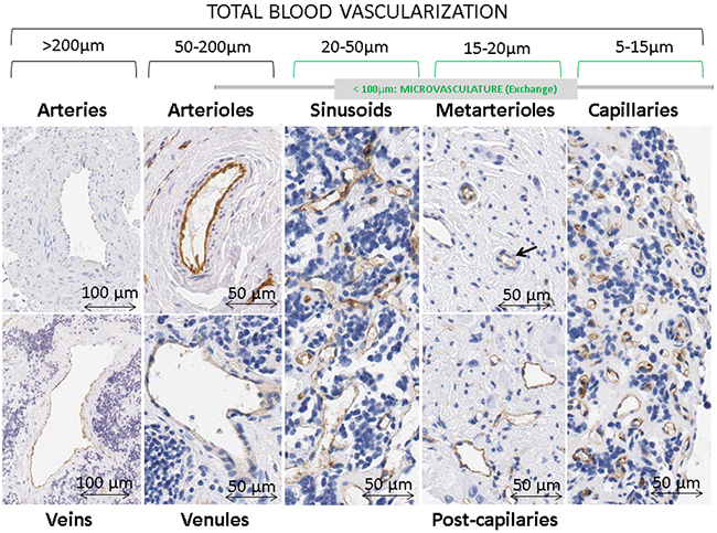 Types of blood vessels stained with immunohistochemistry anti-CD31 in neuroblastoma samples.