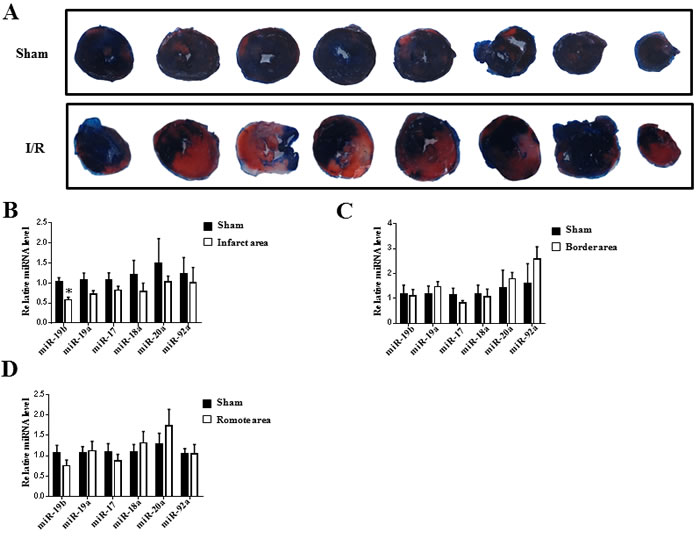 miR-19b is decreased in infarct area of myocardial ischemia-reperfusion mice.