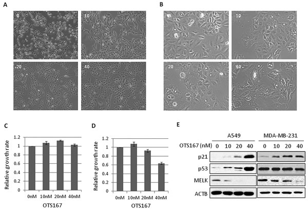 The morphological changes in OTS167-treated cancer cells.