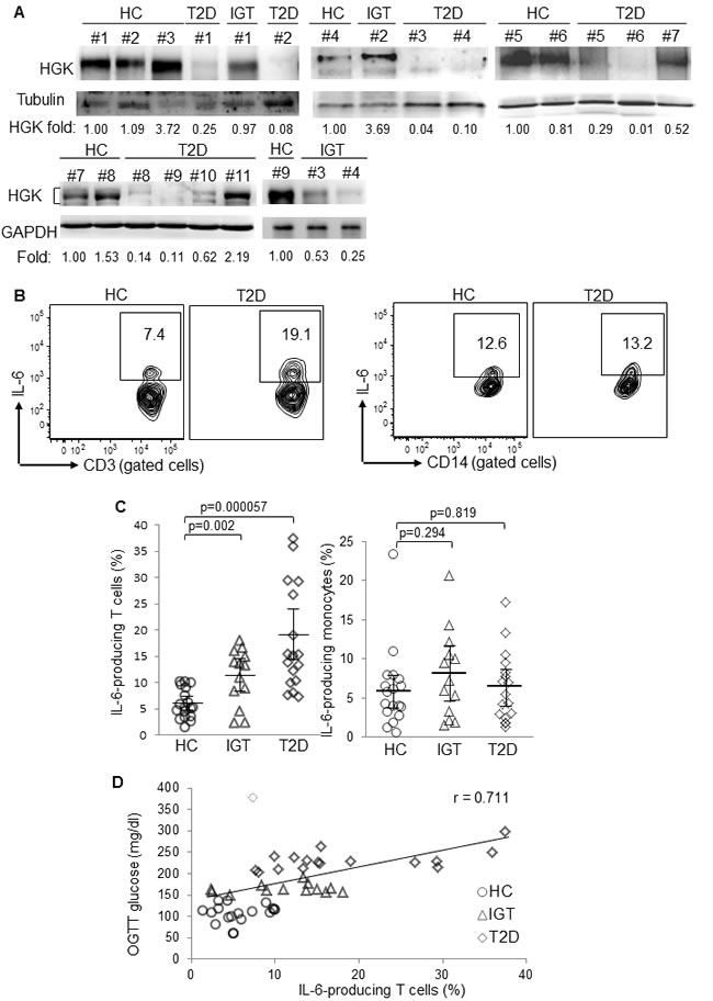 Downregulation of HGK and overproduction of IL-6 in peripheral blood T cells of T2D patients.